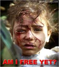 Bloody Iraqi Child